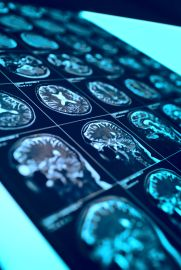 MRI film with human head as a conceptual medical background